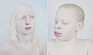 pessoas albinas foto